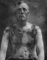 German-American farmer John Meints of Minnesota was tarred and feathered in August 1918 for allegedly not supporting war bond drives.