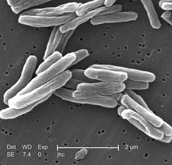 Scanning electron micrograph of M. tuberculosis
