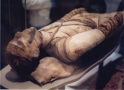 Egyptian mummy in the British Museum – tubercular decay has been found in the spine.