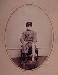 Пациент с ампутацией по методу Пирогова (1867)