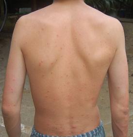 Места укусов комаров