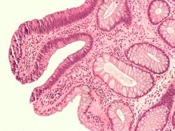 Tubular adenoma high mag.jpg