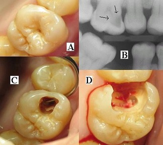 This preoperative photo of tooth #3, (A), reveals no clinically apparent decay other than a small spot within the central fossa. In fact, decay could not be detected with an explorer. Radiographic evaluation, (B), however, revealed an extensive region of demineralization within the dentin (arrows) of the mesial half of the tooth. When a bur was used to remove the occlusal enamel overlying the decay, (C), a large hollow was found within the crown and it was discovered that a hole in the side of the tooth large enough to allow the tip of the explorer to pass was contiguous with this hollow. After all of the decay had been removed, (D), the pulp chamber had been exposed and most of the mesial half of the crown was either missing or poorly supported.