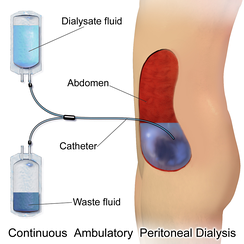 Continuous Ambulatory Peritoneal Dialysis (CAPD)