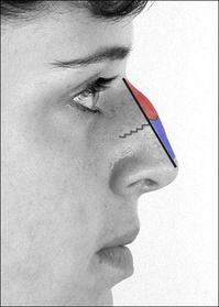 Photograph 4. Rhinoplastic correction: A nasal-hump excision plan; the black line delineates the dorsal plane of the new nose.