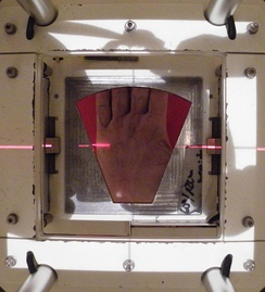 The beam's eye view of the radiotherapy portal on the hand's surface with the lead shield cut-out placed in the machine's gantry