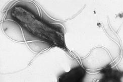 Электронная микрофотография Helicobacter pylori, на клеточной поверхности располагается множество жгутиков