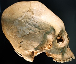 Landesmuseum Württemberg deformed skull, early 6th century Allemannic culture.