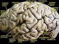 Головной мозг, вид сбоку