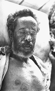 A man with severe hemorrhagic-type smallpox.