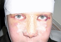 Rhinoplasty: At 3-days post-operative, the patient wearing their nasal splint after a dorsal bone reduction, re-setting, and nasal-tip refinement. The panda eyes (orbital discoloration) is consequent to trauma and ocular blood vessel disruption.
