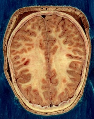 Cortical folds and white matter in horizontal bisection of head