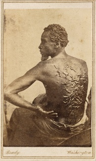 Medical examination photo of Gordon showing his scourged back, widely distributed by Abolitionists to expose the brutality of slavery.