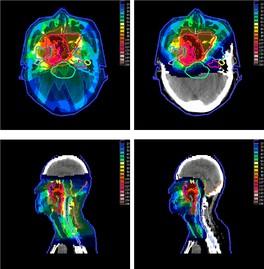 Воздействие на опухоль носоглотки с помощью фотонной терапии (слева) и протонной терапии (справа): сравнение полученных радиационных доз. Из исследования Taheri-Kadkhoda et al., 2008.[5]
