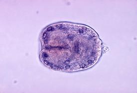 Echinococcus granulosus scolex.jpg