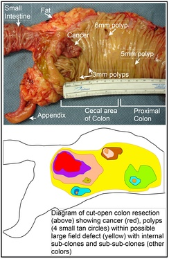 Longitudinally opened freshly resected colon segment showing a cancer and four polyps.  Plus a schematic diagram indicating a likely field defect (a region of tissue that precedes and predisposes to the development of cancer) in this colon segment. The diagram indicates sub-clones and sub-sub-clones that were precursors to the tumors.