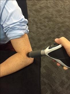 Применение ударно-волновой терапии при латеральной эпикондилалгии (теннисном локте)