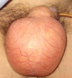 Подкожная эмфизема мошонки после перелома рёбер.