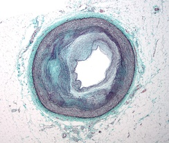 Micrograph of a coronary artery with the most common form of coronary artery disease (atherosclerosis) and marked luminal narrowing. Masson's trichrome.
