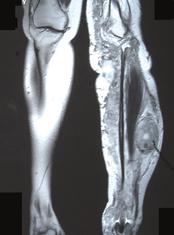 МРТ левой голени: злокачественная опухоль оболочки большеберцового нерва при синдроме Реклингхаузена (NF-1).