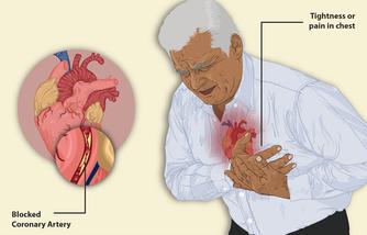 Приступ боли при стенокардии. Показана заблокированная коронарная артерия.