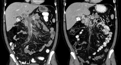 Portal vein thrombosis on computed tomography (left) and cavernous transformation of the portal vein after 1 year (right)