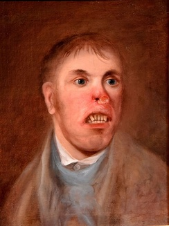 Portrait of Mr. J. Kay, affected with what is now believed to have been congenital syphilis c. 1820[44]