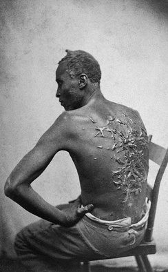 Scars of Gordon, a whipped Louisiana slave, photographed in April 1863 and later distributed by abolitionists.