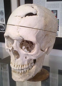 Skull of Phineas Gage