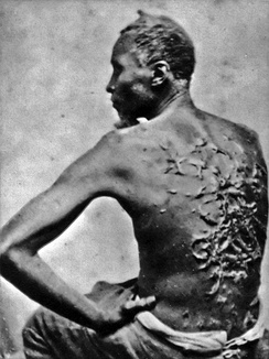 Scars of a whipped slave, April 2, 1863, Baton Rouge, Louisiana