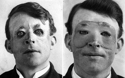 Walter Yeo, a sailor injured at the Battle of Jutland, is assumed to have received plastic surgery in 1917. The photograph shows him before (left) and after (right) receiving a flap surgery by Sir Harold Gillies.