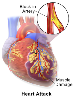 A myocardial infarction occurs when an atherosclerotic plaque slowly builds up in the inner lining of a coronary artery and then suddenly ruptures, causing catastrophic thrombus formation, totally occluding the artery and preventing blood flow downstream.
