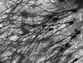 Golgi-stained neurons in human hippocampal tissue