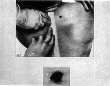 Drawing depicting the back wound of President Kennedy. Made from an autopsy photograph.