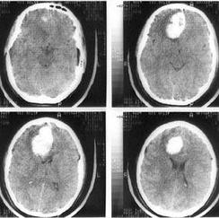 Компьютерная томография головного мозга. Гипертензионная субкортикальная гематома в правой лобной доле