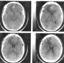 Компьютерная томография головного мозга того же больного через 4 дня после операции— удаления внутримозговой гематомы правой лобной доли