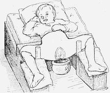 Ребенок в кокситной повязке после вправления врождённого вывиха бедра.