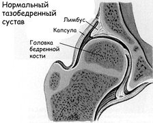 Congenital dislocation of the hip5-1.jpg