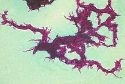 Проявление корд-фактора (рост колонии МБТ, напоминающий мицелий грибницы)